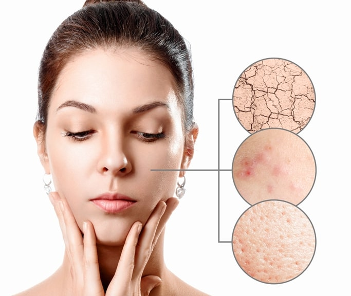 consejo-dermatologico-famacia-sagrario