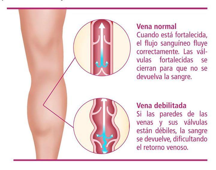 Síndrome de las piernas cansadas