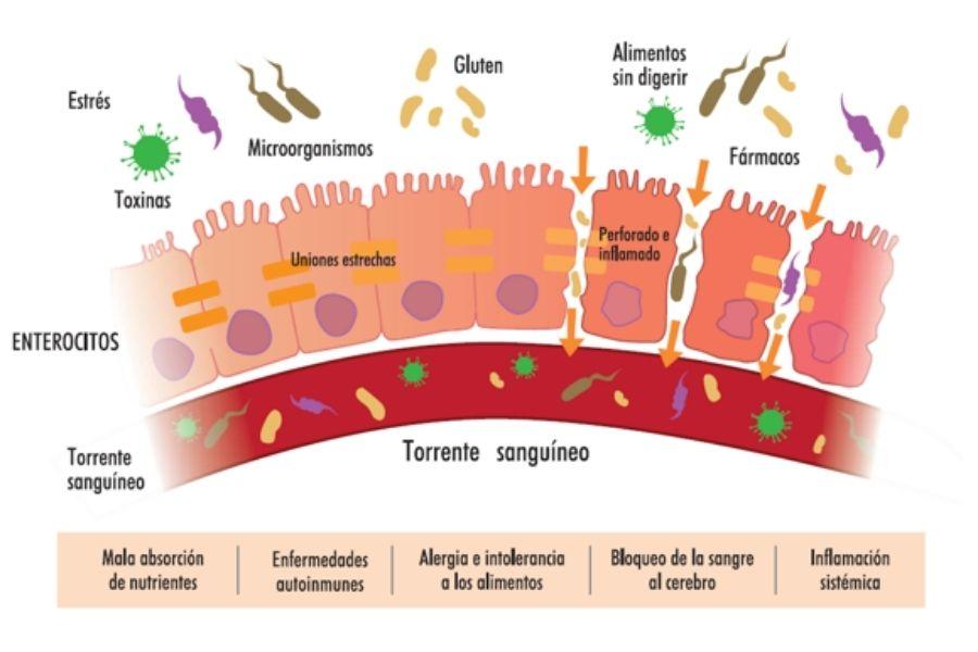 Problemas del intestino irritable